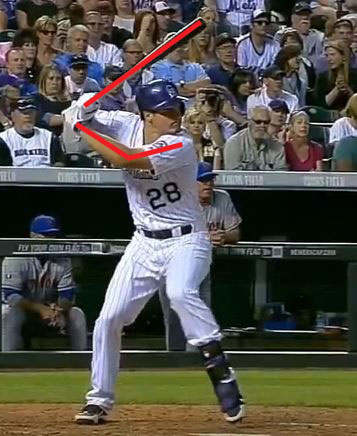 Arenado leg lift annotated
