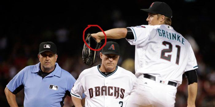 Diamondbacks' pitcher Zack Greinke shows palm